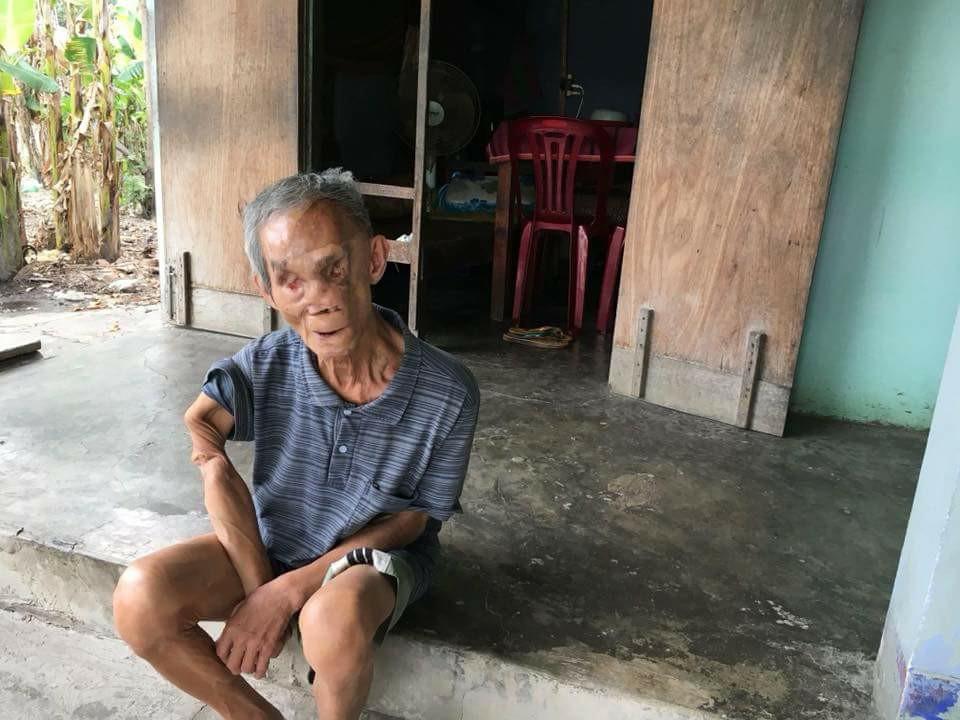 Cuộc sống sau ngày trở về từ chiến trường của cựu chiến binh bị bom đạn tàn phá khuôn mặt, mù đôi mắt  - Ảnh 1