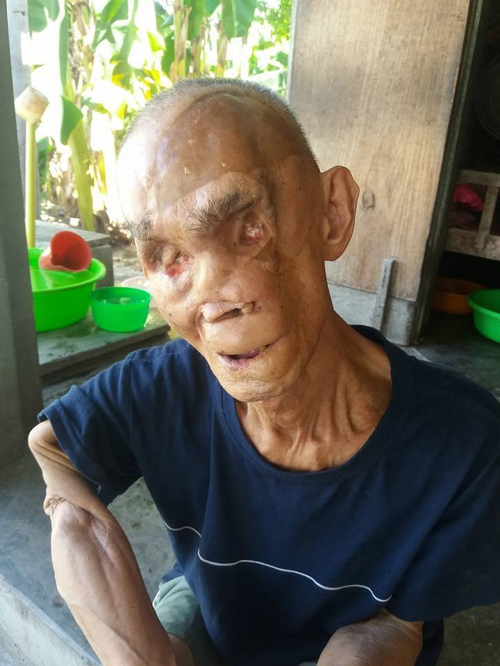Cuộc sống sau ngày trở về từ chiến trường của cựu chiến binh bị bom đạn tàn phá khuôn mặt, mù đôi mắt  - Ảnh 2
