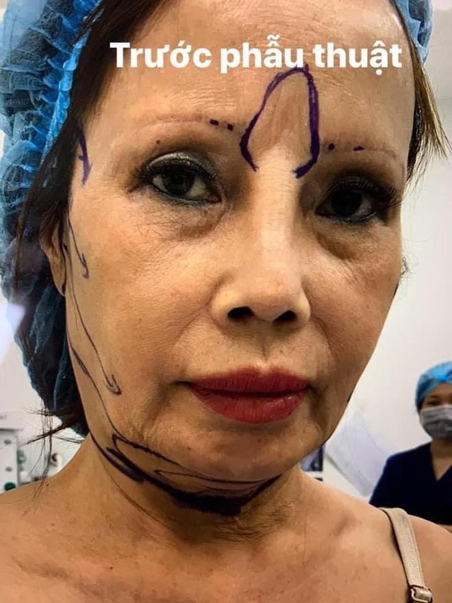 Xôn xao hình ảnh gương mặt sưng phù, biến dạng của 'cô dâu 62 tuổi' và sự cưng nựng của chồng trẻ kém 36 tuổi gây bất ngờ - Ảnh 1