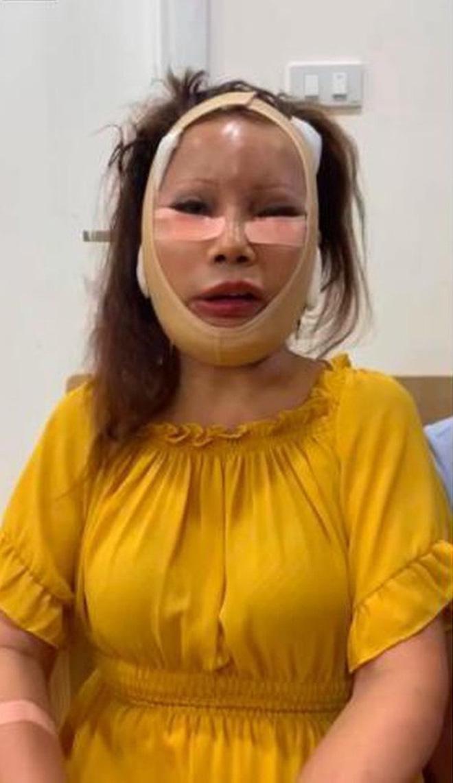 Xôn xao hình ảnh gương mặt sưng phù, biến dạng của 'cô dâu 62 tuổi' và sự cưng nựng của chồng trẻ kém 36 tuổi gây bất ngờ - Ảnh 2
