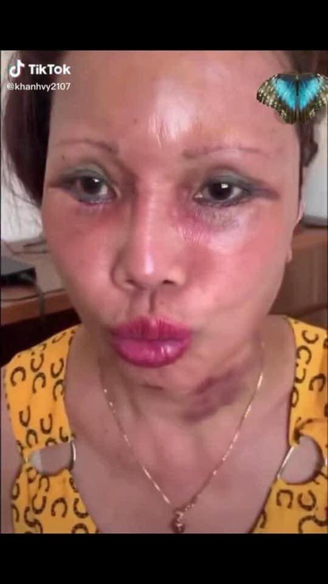 Xôn xao hình ảnh gương mặt sưng phù, biến dạng của 'cô dâu 62 tuổi' và sự cưng nựng của chồng trẻ kém 36 tuổi gây bất ngờ - Ảnh 4