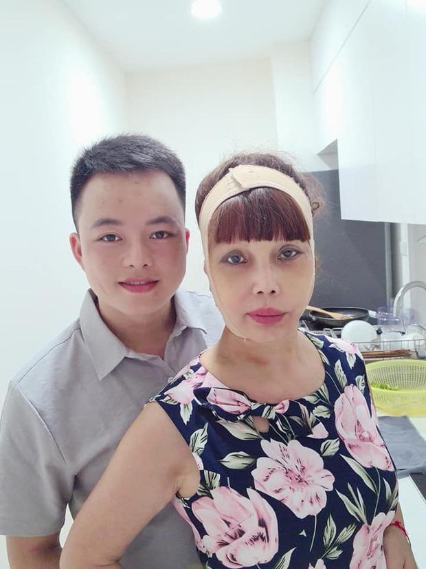 Xôn xao hình ảnh gương mặt sưng phù, biến dạng của 'cô dâu 62 tuổi' và sự cưng nựng của chồng trẻ kém 36 tuổi gây bất ngờ - Ảnh 6