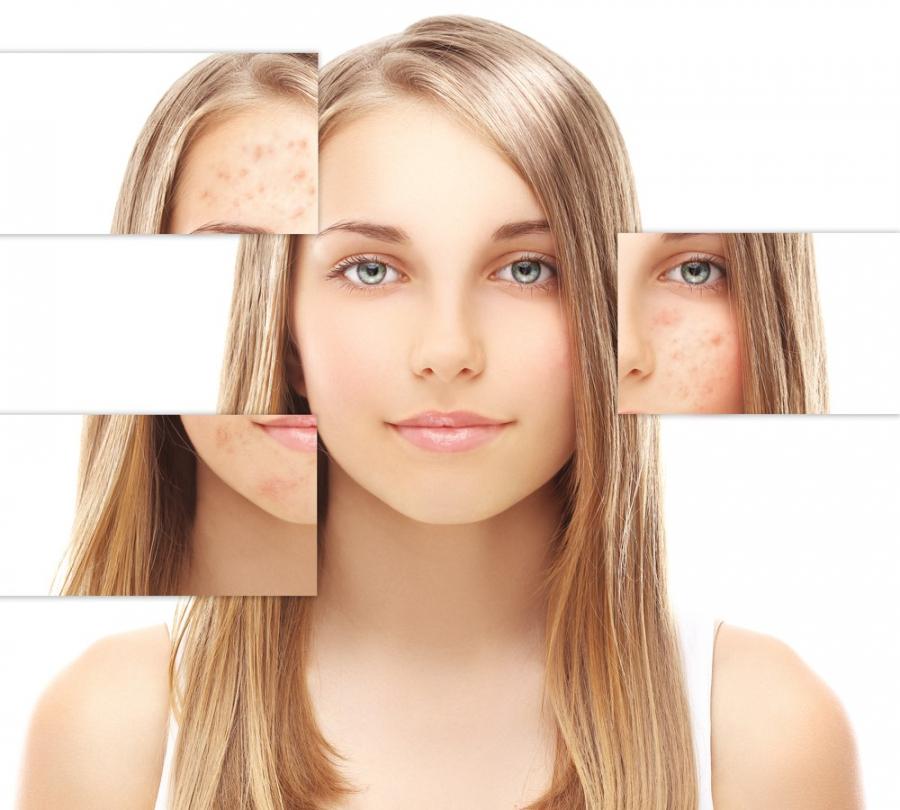 'Đánh bay' vết nám da cứng đầu lâu năm với nguyên liệu cực rẻ mà lại dễ tìm - Ảnh 2