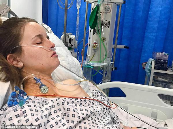 Cô gái 25 tuổi phải cắt bỏ 1 nửa gan vì lạm dụng thuốc tránh thai - Ảnh 2