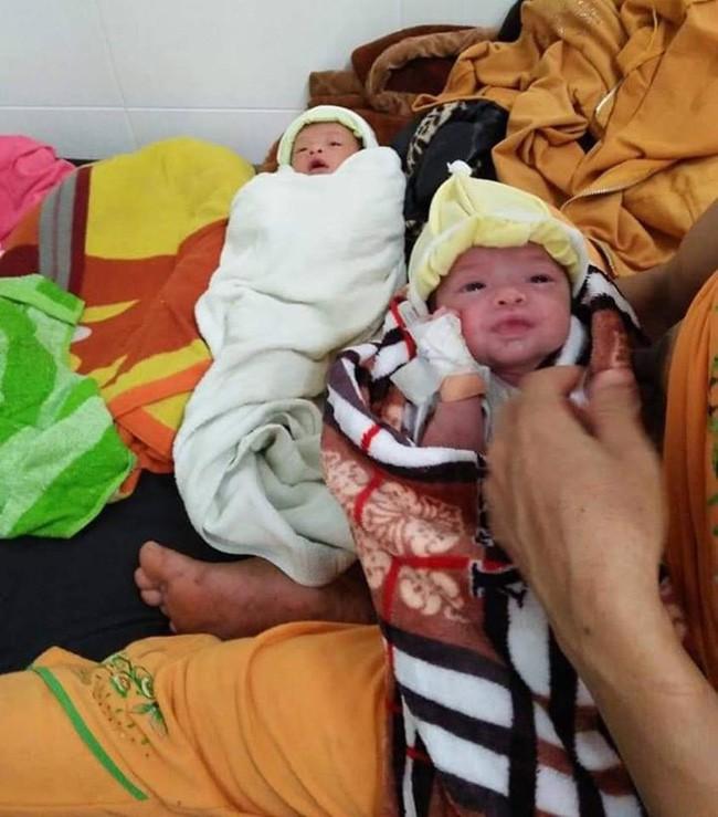 Hai bé gái song sinh suy dinh dưỡng trên tay người mẹ dân tộc nghèo, thiếu sữa, tã và không có tiền chữa bệnh - Ảnh 1