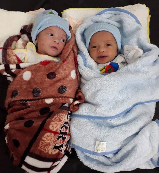 Hai bé gái song sinh suy dinh dưỡng trên tay người mẹ dân tộc nghèo, thiếu sữa, tã và không có tiền chữa bệnh - Ảnh 2
