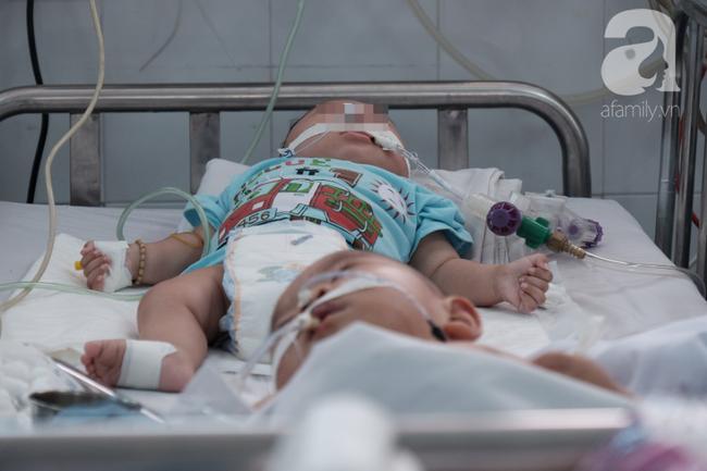 Thống kê sau khi 2 trẻ chết vì tiêm vắc-xin ComBE Five: 6/12 tỉnh ghi nhận có trẻ sốt cao kéo dài - Ảnh 3