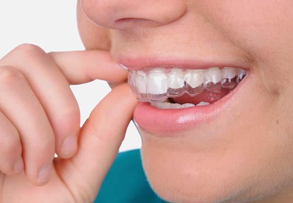 Trị chứng nghiến răng ở trẻ  - Ảnh 1