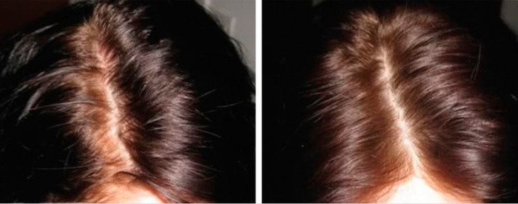 12 mẹo làm đẹp đơn giản giúp khắc phục mọi vấn đề về da và tóc, là phụ nữ nhất định phải biết - Ảnh 5