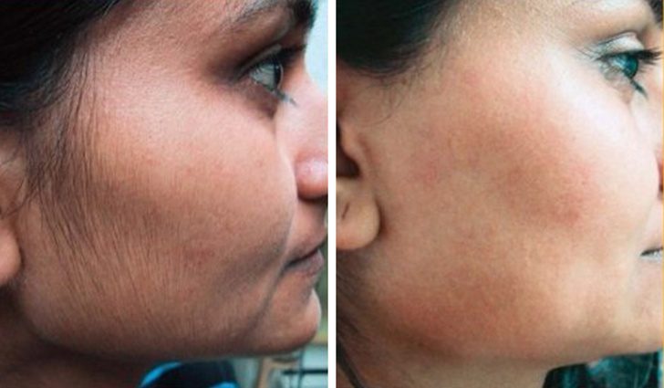 12 mẹo làm đẹp đơn giản giúp khắc phục mọi vấn đề về da và tóc, là phụ nữ nhất định phải biết - Ảnh 7