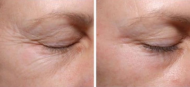 12 mẹo làm đẹp đơn giản giúp khắc phục mọi vấn đề về da và tóc, là phụ nữ nhất định phải biết - Ảnh 8