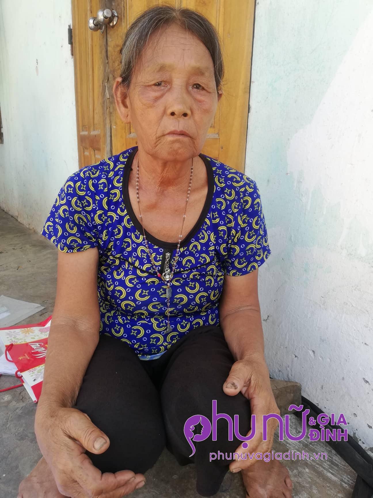 Xót xa: Cụ bà chấp nhận mù lòa để nhường sự sống cho chồng mắc bệnh hiểm nghèo - Ảnh 1