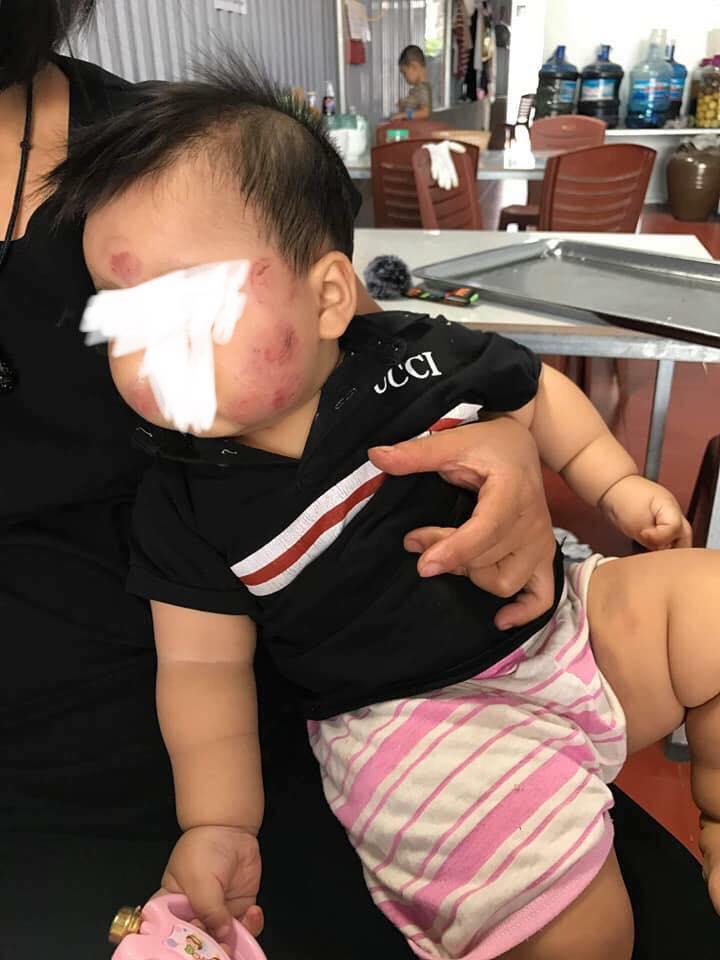 Bé trai 10 tháng tuổi chi chít vết thương ở mặt và đùi khi đi học mầm non: Cô giáo giải thích do đóng lệch bỉm - Ảnh 3