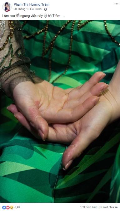 Sao Việt khủng hoảng vì stress: Người tự bóc tay đến rỉ máu, người có ý định nhảy lầu tự tử - Ảnh 1