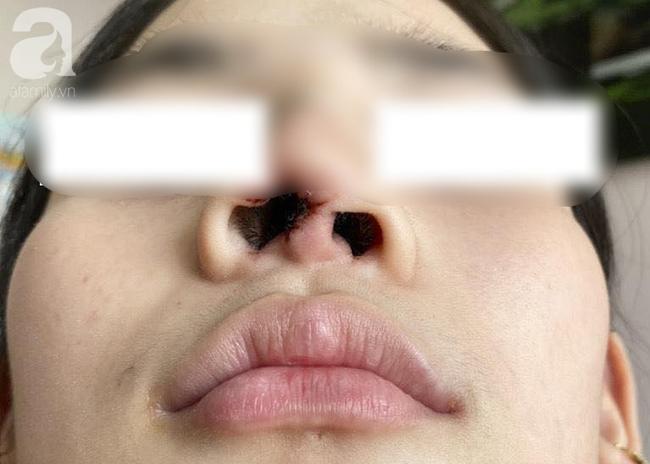 Đi nâng mũi tại spa, thiếu nữ 16 tuổi ở TP.HCM bị nhiễm trùng, biến dạng nặng nề đầu mũi - Ảnh 1