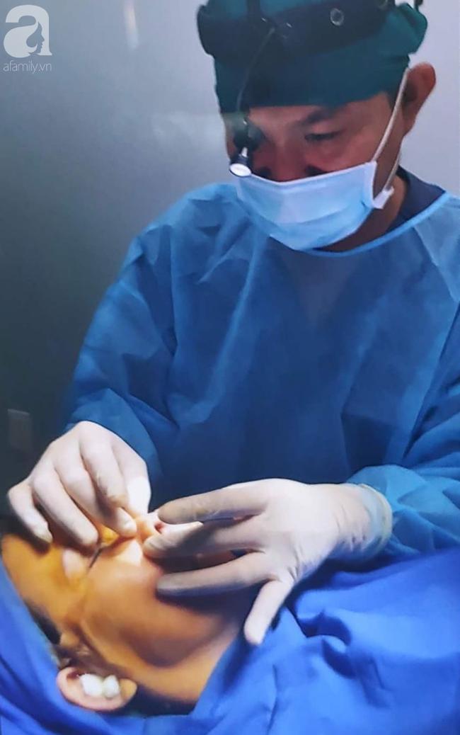 Đi nâng mũi tại spa, thiếu nữ 16 tuổi ở TP.HCM bị nhiễm trùng, biến dạng nặng nề đầu mũi - Ảnh 2