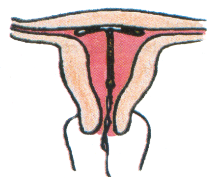 Vòng tránh thai có gây vướng khi làm 'chuyện ấy'? - Ảnh 1