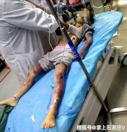 Bé gái 6 tuổi mất mạng vì bị bố tát 2 cái nhưng sự thật kinh khủng hơn thế - Ảnh 1