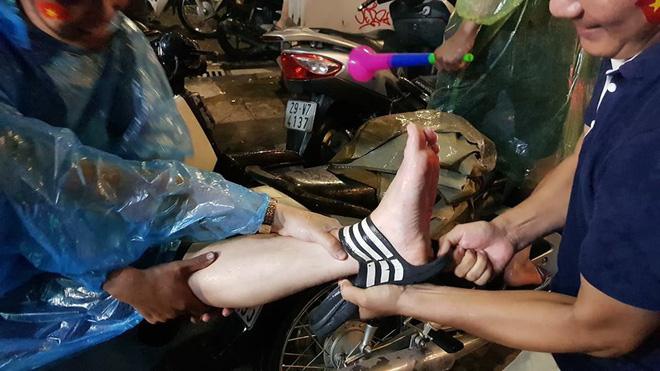 Chàng trai gặp tai nạn dở khóc dở cười khi 'đi bão' chúc mừng đội tuyển Olympic Việt Nam - Ảnh 2