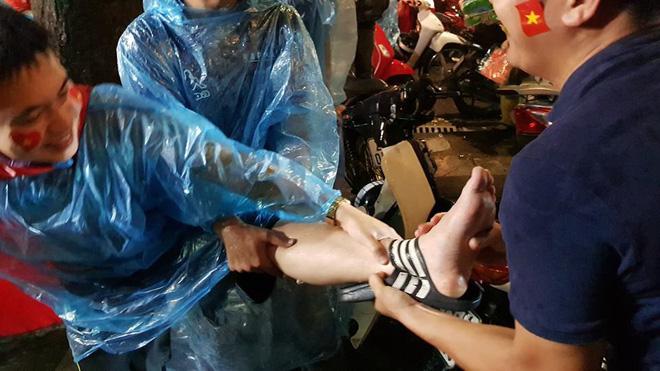 Chàng trai gặp tai nạn dở khóc dở cười khi 'đi bão' chúc mừng đội tuyển Olympic Việt Nam - Ảnh 3