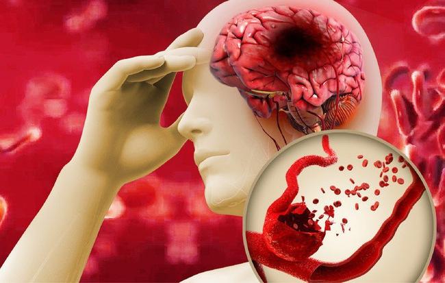 Bệnh mỡ máu cao là 'con đường chết chóc': Khuyến cáo 8 nhóm người nên chú ý đặc biệt - Ảnh 1