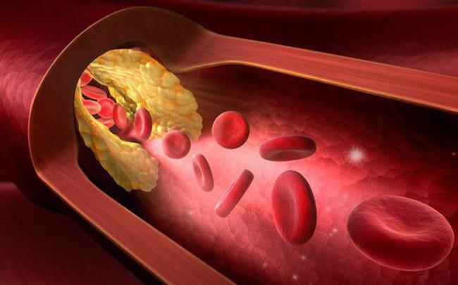 Bệnh mỡ máu cao là 'con đường chết chóc': Khuyến cáo 8 nhóm người nên chú ý đặc biệt - Ảnh 2