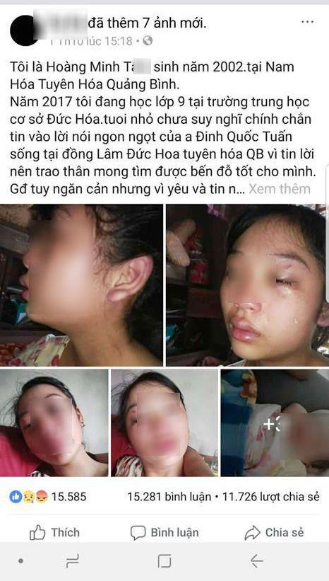 Vợ 16 tuổi lên mạng tố chồng đánh đập, siết cổ, đuổi ra khỏi nhà khi mới sinh con được 1 tháng - Ảnh 1