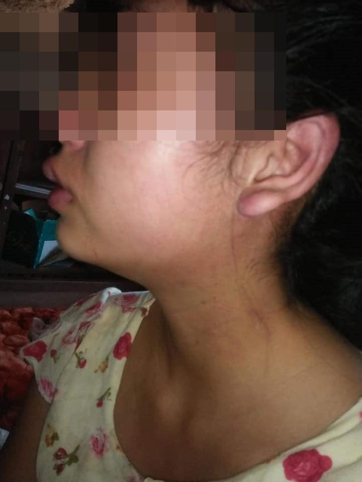 Vợ 16 tuổi lên mạng tố chồng đánh đập, siết cổ, đuổi ra khỏi nhà khi mới sinh con được 1 tháng - Ảnh 2