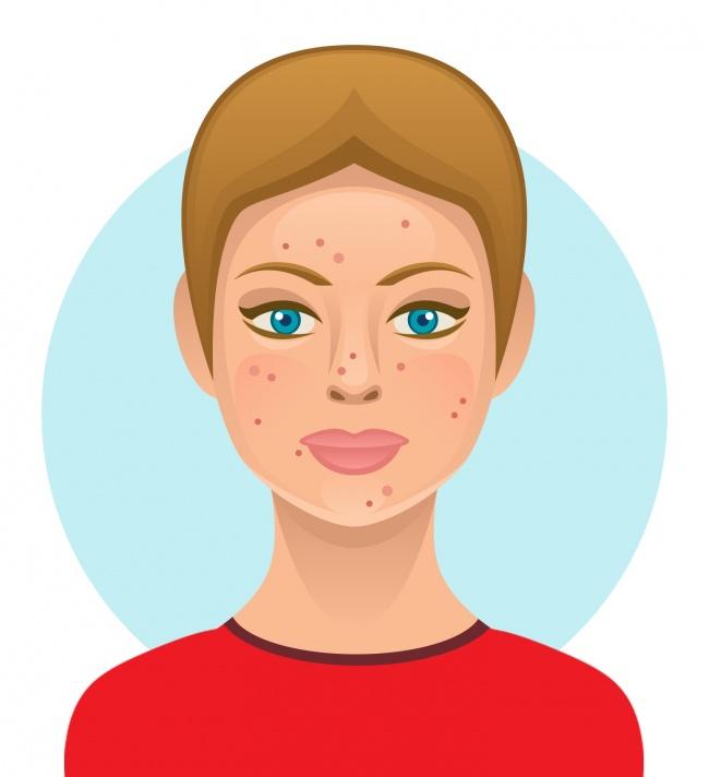 Nếu không muốn Tết này xuất hiện với nhan sắc già nua, làn da chi chít khuyết điểm, hãy tránh xa 7 thực phẩm này - Ảnh 4