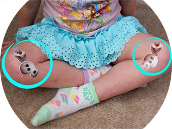 Hậu quả khôn lường từ tư thế ngồi vô cùng phổ biến ở trẻ nhỏ - Ảnh 3