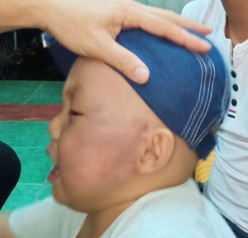 Dỗ mãi không nín, bé 19 tháng tuổi bị cô giáo đánh sưng mặt phải nhập viện - Ảnh 1