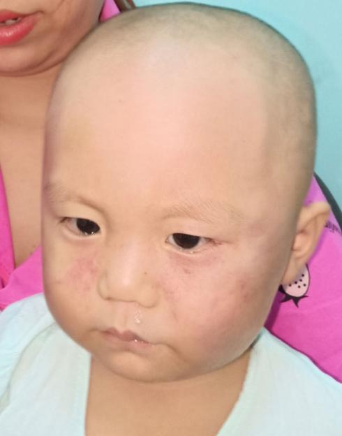 Dỗ mãi không nín, bé 19 tháng tuổi bị cô giáo đánh sưng mặt phải nhập viện - Ảnh 2