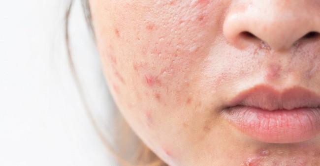 Đây chính là 4 viễn cảnh kinh hoàng xảy đến với làn da nếu bạn chỉ tẩy trang qua loa, đại khái - Ảnh 2