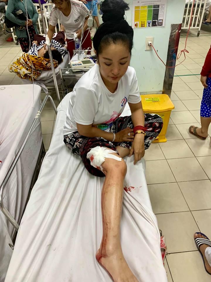 'Lạnh gáy' với hình ảnh Thúy Nga gặp tai nạn, máu me bê bết trong bệnh viện - Ảnh 1