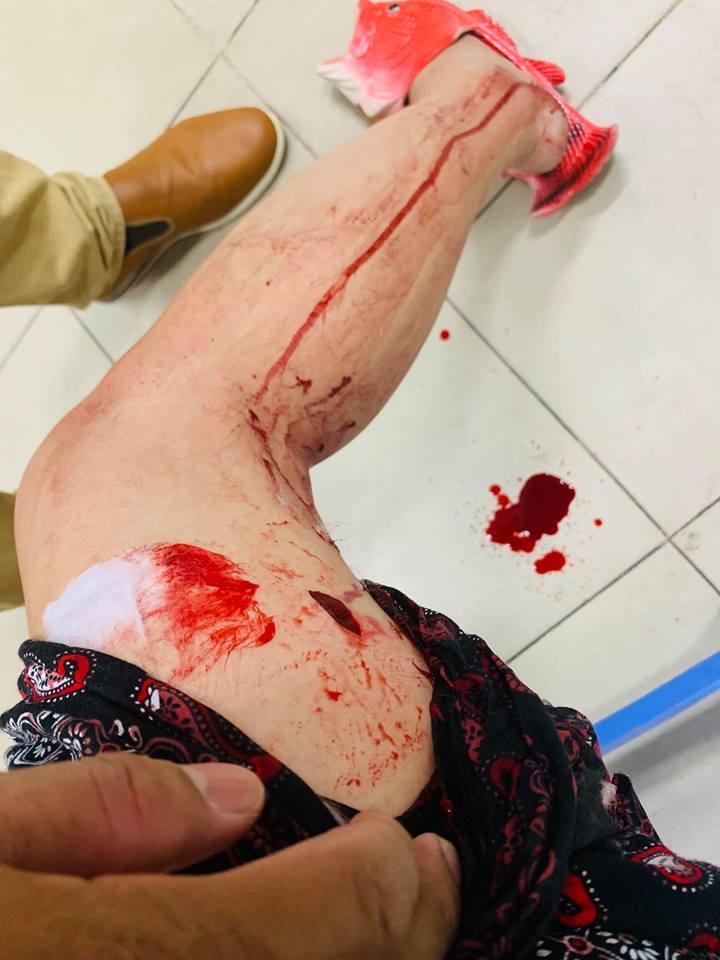 'Lạnh gáy' với hình ảnh Thúy Nga gặp tai nạn, máu me bê bết trong bệnh viện - Ảnh 2