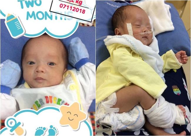 Nhật ký 1 năm nuôi con sinh non nặng 1.3kg, đi 'nghỉ dưỡng' ở viện nhiều hơn ở nhà của mẹ Nghệ An - Ảnh 4