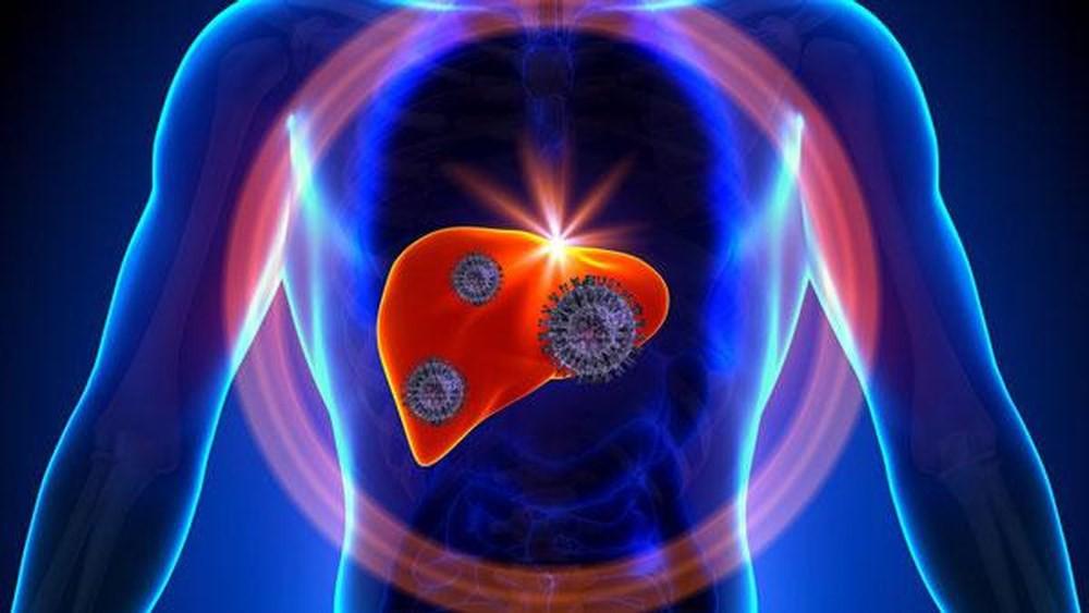 5 nguyên nhân không ngờ dẫn đến bệnh ung thư gan mà nhiều người thường hay chủ quan bỏ qua - Ảnh 1