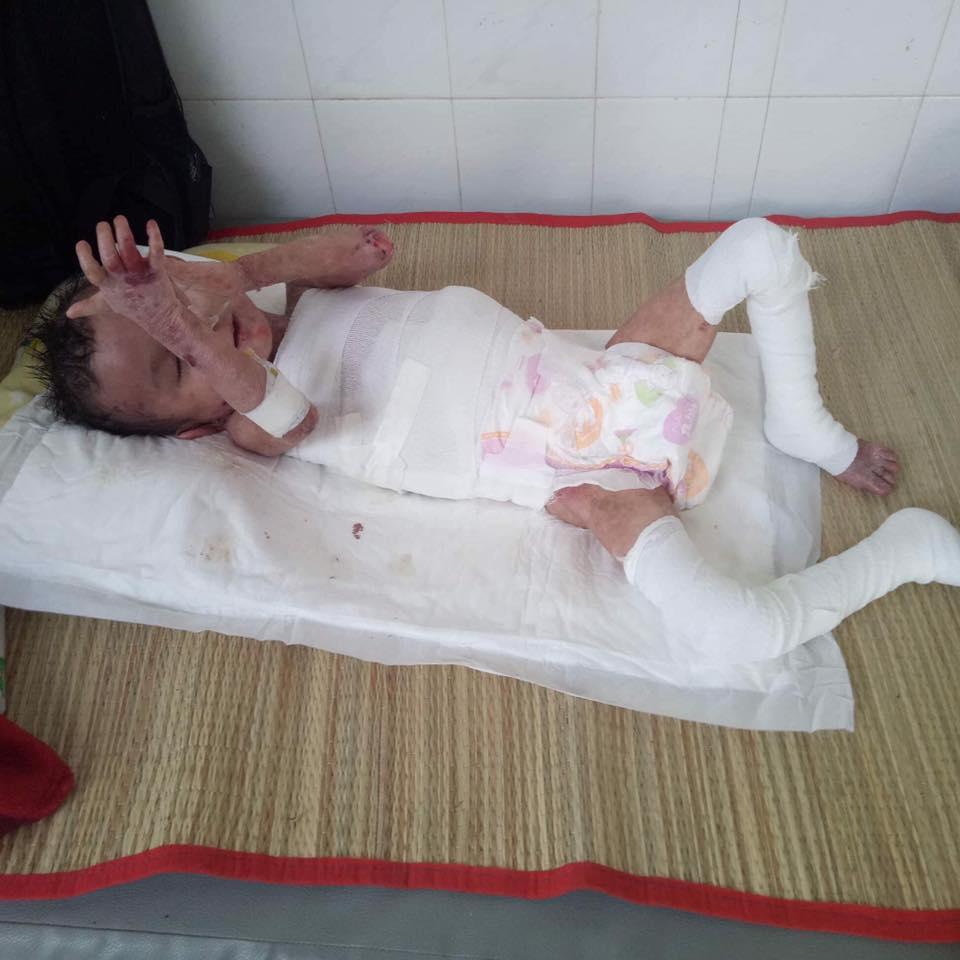 Số phận bất hạnh của bé trai 4 tuổi mồ côi mẹ, toàn thân bong tróc, tứa máu vì căn bệnh quái ác - Ảnh 2