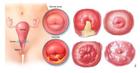 19, 20 tuổi ung thư cổ tử cung: Bác sĩ chỉ ra nguyên nhân nhiều bạn trẻ sẽ giật mình - Ảnh 1