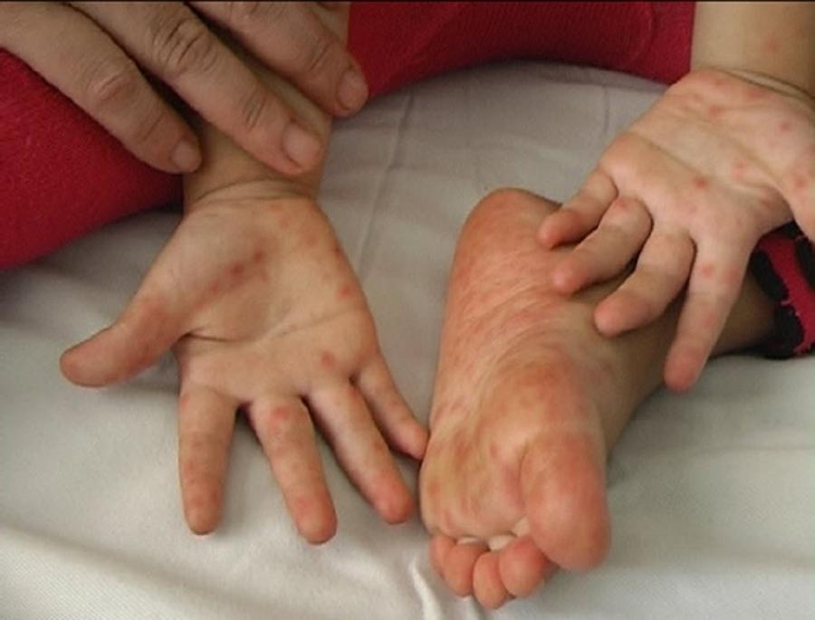 Khi con bị tay-chân-miệng nếu cha mẹ thấy bé có dấu hiệu này nhập viện ngay kẻo biến chứng rất nhanh và nguy hiểm - Ảnh 1