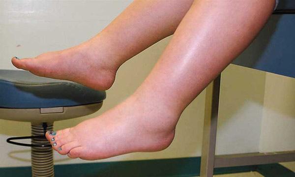 3 dấu hiệu trên bàn chân cảnh báo thận đang dần suy kiệt - Ảnh 1