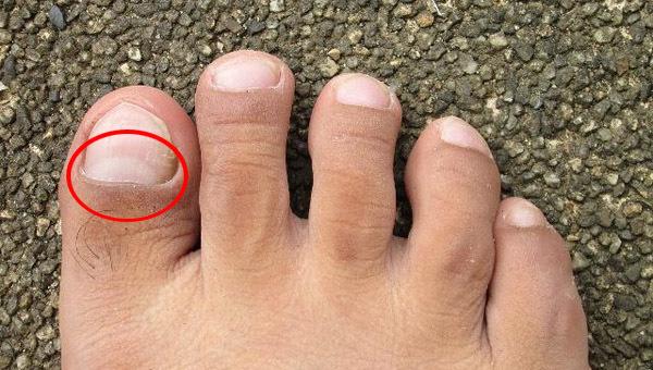 3 dấu hiệu trên bàn chân cảnh báo thận đang dần suy kiệt - Ảnh 2