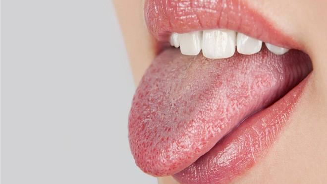 5 triệu chứng bất thường ở răng miệng cảnh báo nhiều vấn đề nguy hại mà bạn không nên chủ quan bỏ qua - Ảnh 3