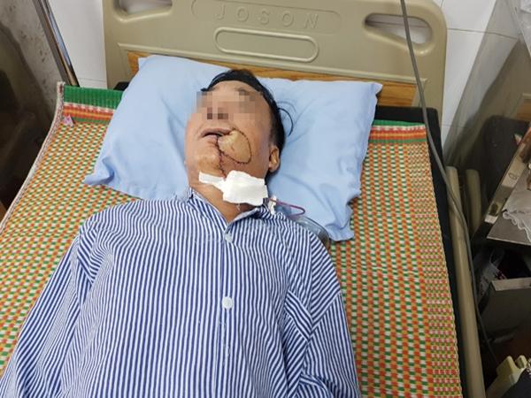 Tưởng bị nhiệt miệng, người đàn ông Hà Nội phải cắt 1 góc má vì ung thư - Ảnh 1