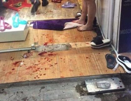 Thanh niên ngáo đá đang ngủ bất ngờ tỉnh dậy đâm chết mẹ ruột và gây thương tích cho người tình - Ảnh 1