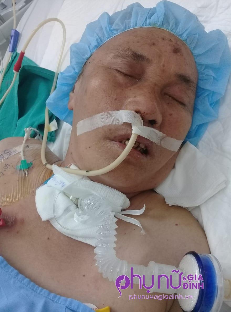 Không chồng, không con, người phụ nữ gồng mình giành giật sự sống sau tai nạn - Ảnh 1