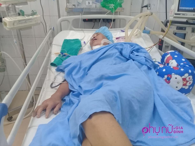 Không chồng, không con, người phụ nữ gồng mình giành giật sự sống sau tai nạn - Ảnh 5