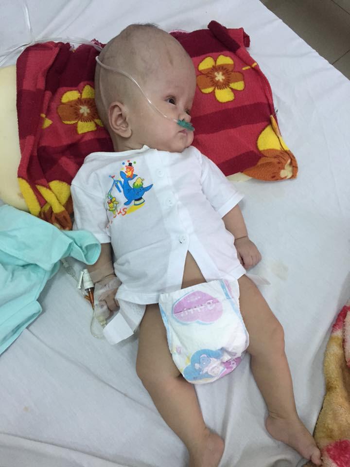 Mẹ quỳ gối, cầu xin mọi người cứu con trai 13 tháng tuổi bị não úng thủy không có tiền phẫu thuật - Ảnh 1
