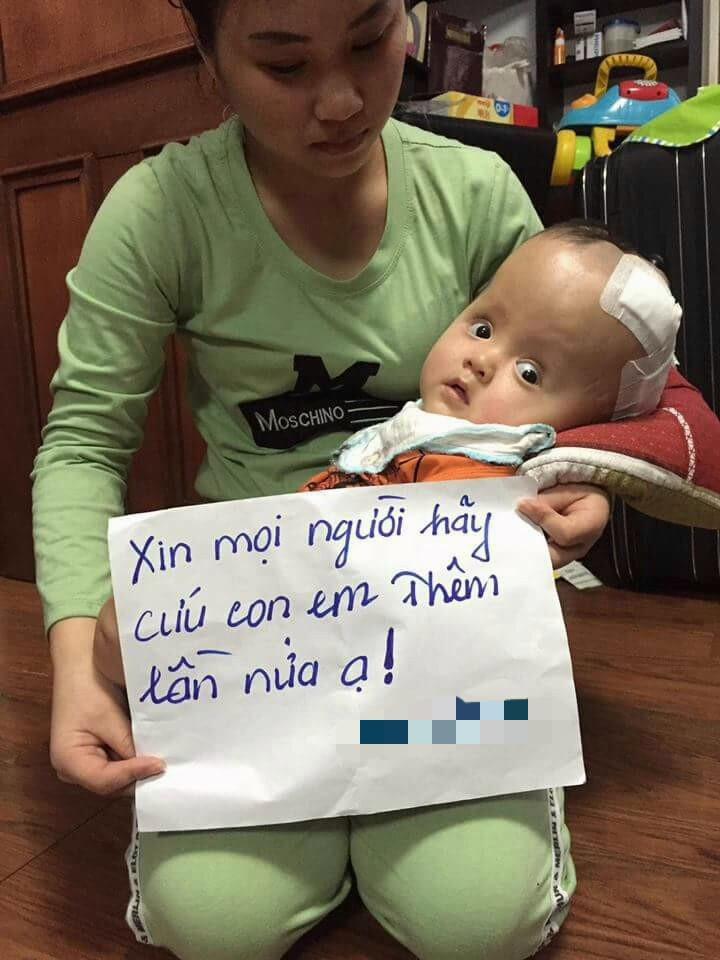Mẹ quỳ gối, cầu xin mọi người cứu con trai 13 tháng tuổi bị não úng thủy không có tiền phẫu thuật - Ảnh 4