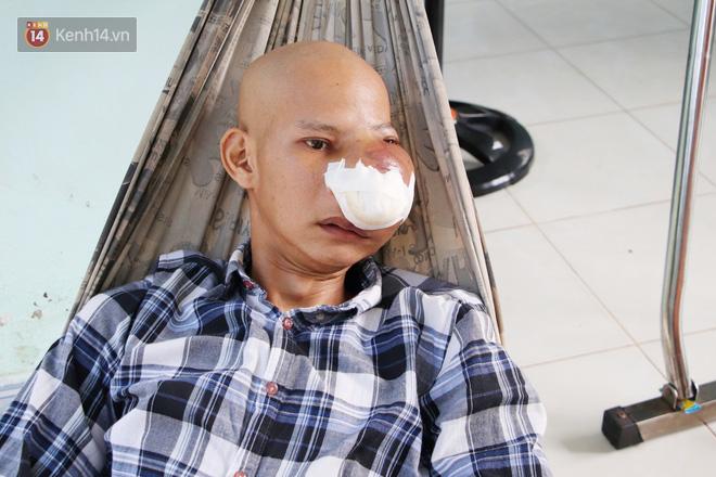 Bước đường cùng của người cha bị ung thư hốc mũi ôm 2 đứa con thơ dại: 'Con sợ cha chết, không sống cùng tụi con nữa' - Ảnh 2